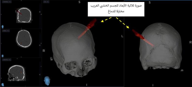 طاقم جراحة المخ والأعصاب بمجمع السلمانية الطبي ينقذ حياة رجل إثر إصابة بليغة في الدماغ