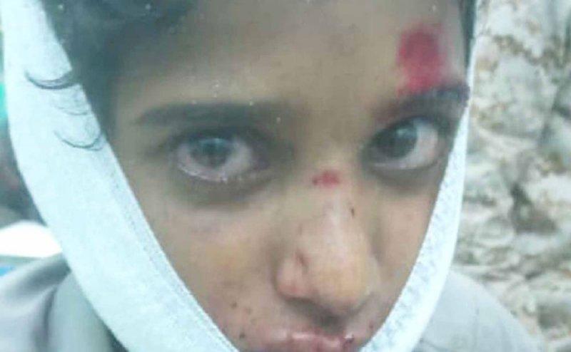 صواريخ باليستية حوثية تحصد ضحايا مدنيين في مأرب