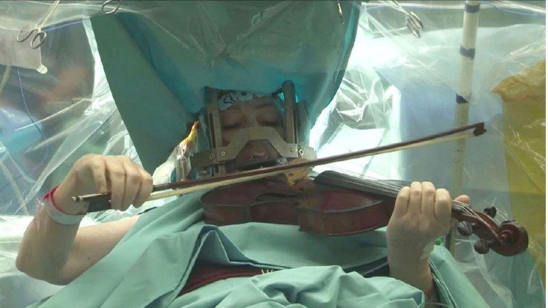 تعزف على الكمان أثناء خضوعها لجراحة في المخ